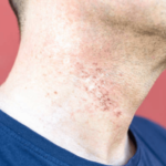 electric shaving irritation on neck