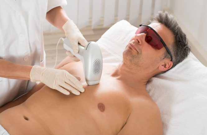 male hair removal by laser