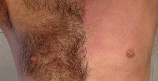 waxing male chest