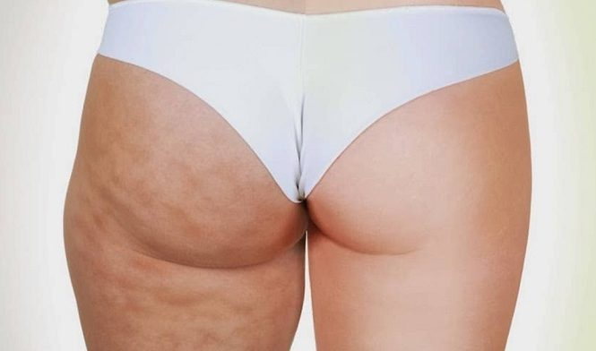 cellulite cream ingredients to look for