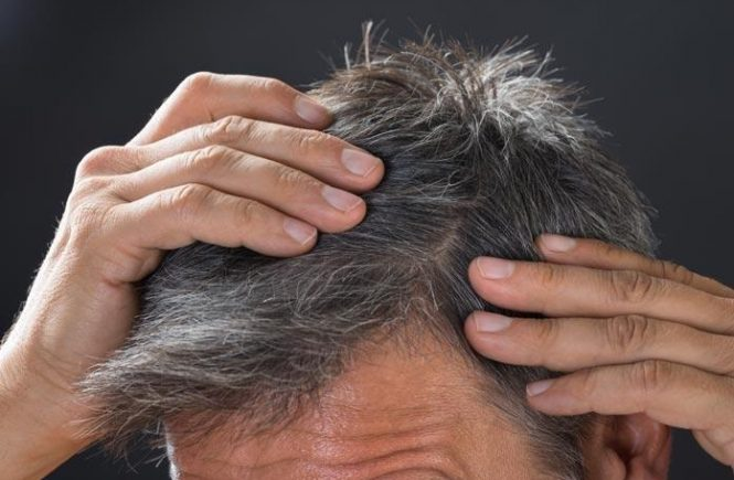 damaged hair in men
