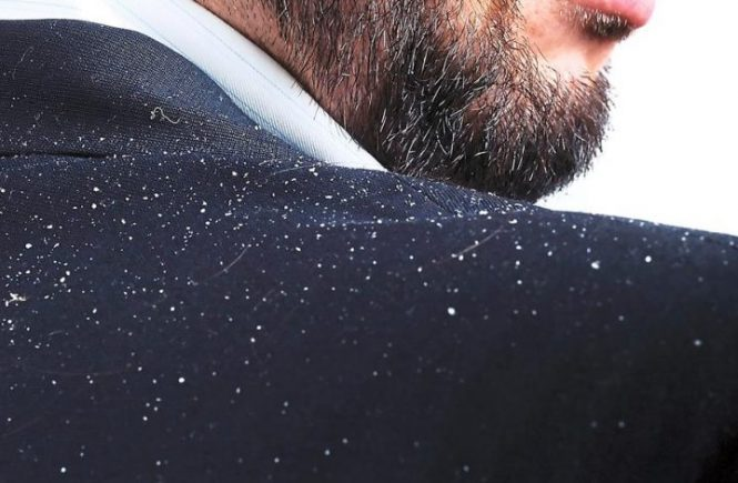 how to remove dandruff with natural remedies